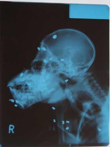 X-ray of gun pellets in Leuser's skull. Photo courtesy of SOCP