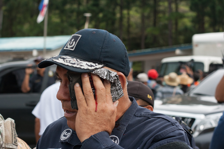 A policeman who was struck on the head with a rock thrown by a protester. Photo by Camilo Mejia Giraldo