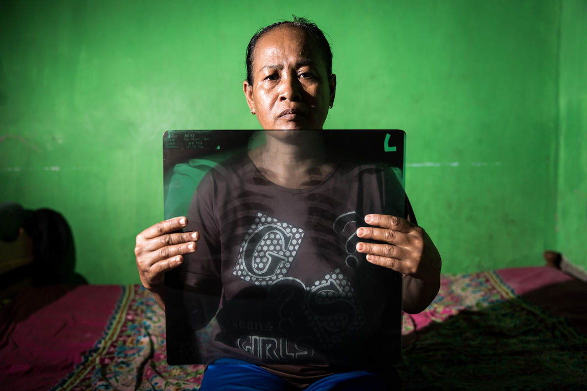 50 year-old Munjiah holds her chest X-Ray, showing specks in her lungs at her home near the Cilacap coal-fired power station in Central Java. Photo by Kemal Jufri/Indonesia.