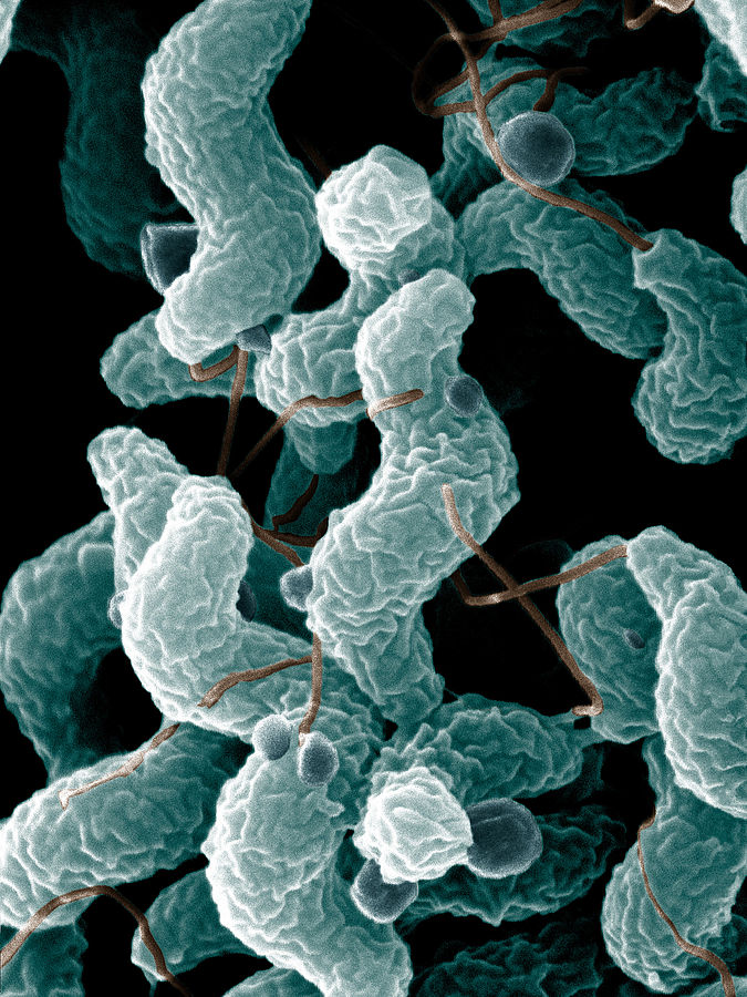 Electron microscope image of Campylobacter