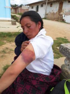 Los sucesivos ataques dejaron graves lesiones en el cuerpo de Máxima Acuña producto de los desalojos que sufrió desde el 2011. Fotografía: Servindi.org