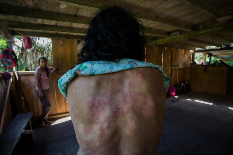 Derrame petrolero en el río Coca. Producto del derrame del 7 de abril, varias personas de las comunidades kichwa han sufrido severas afectaciones como manchas y ronchas en la piel. Foto: Ivan Castaneira/Agencia Tegantai.