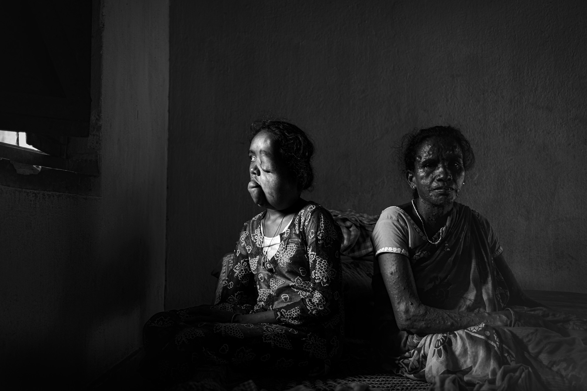 Anamika Oraom (15) with her mother Nagi Oraom (45) in Dungridi village, roughly one kilometer away from Narwa Pahar uranium mine. Anamika suffers from a malignant tumor on her face but the family cannot afford surgery. Her mother also suffers from various physical ailments. Photo by Subhrajit Sen.