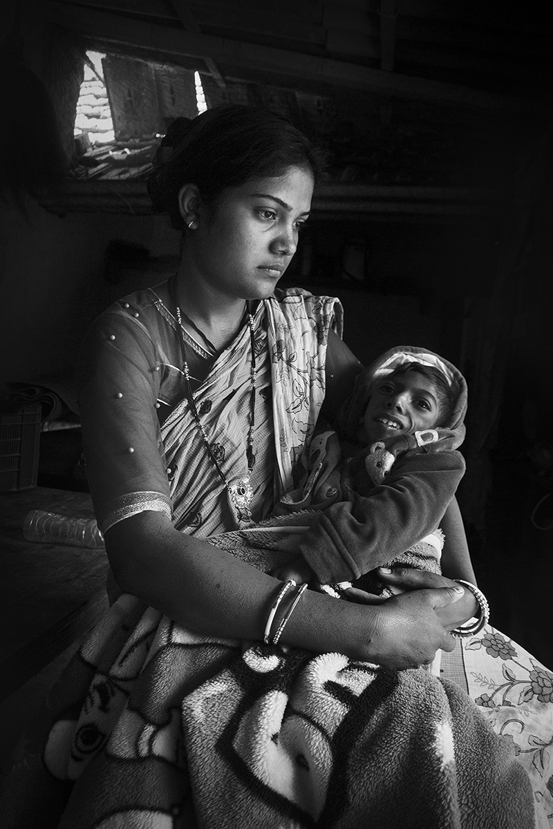 Namita Soren with her child in of Dungridi village. Jaduguda and other regions surrounding uranium mines have witnessed high rates of miscarriages and children with physical disorders. Photo by Subhrajit Sen.