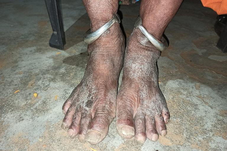 19—सेवापुरा के ही बंशीधर गुर्जर (52) अपने पैरों को दिखाते हुए। दूषित पानी की वजह से इनके पैरों में ये दाग हुए हैं।
